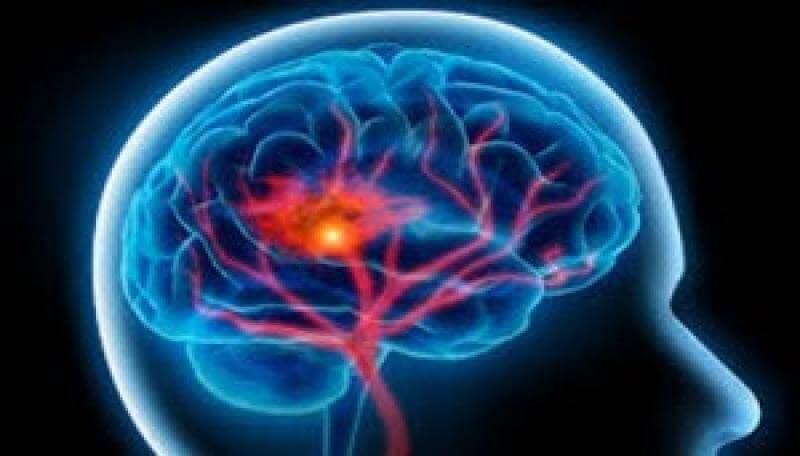 68712-57310-brain-stroke-11290