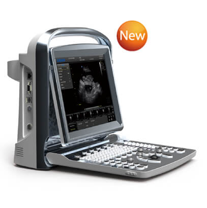 Chison ECO1 Portable Ultrasound
