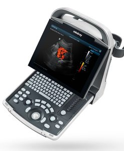 Mindray DP 30 Portable Ultrasound Machine